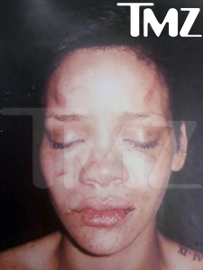 Rihanna's face after Chris Brown mauling